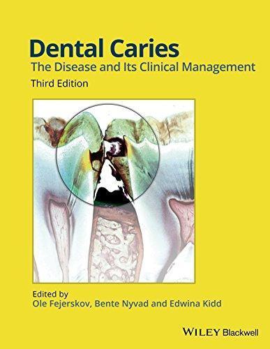 dental caries 3rd edition pdf fejerskov free